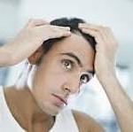 caida-de-cabello
